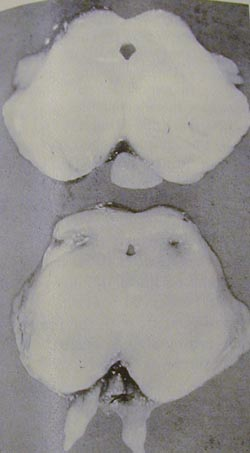 Inferior colliculus damage (bottom) in a human infant